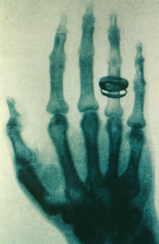 Roentgen early x-ray