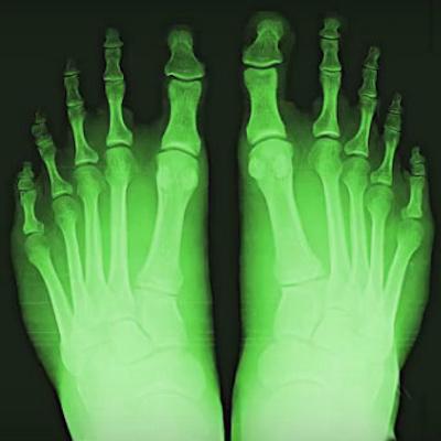 Shoe Fitting Fluoroscope Cancer