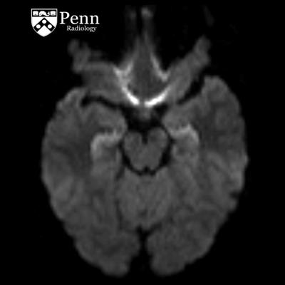 Radiology news education service 20 year old man with amnesia after seizures sciox Choice Image